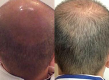 男の発毛|写真